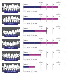 alignery czyli nakładki na zęby